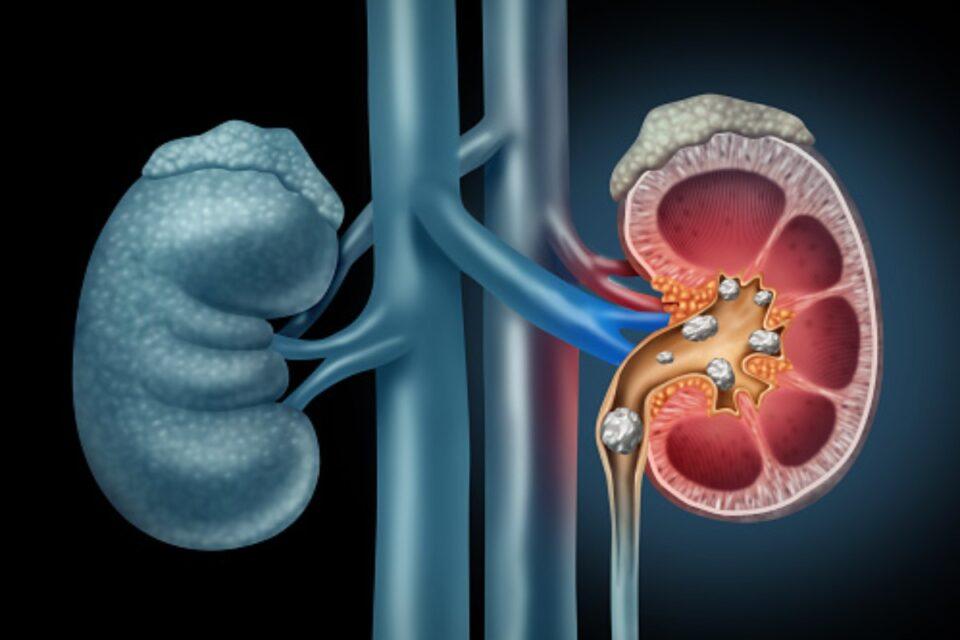 Kidney Stones Diagnosed